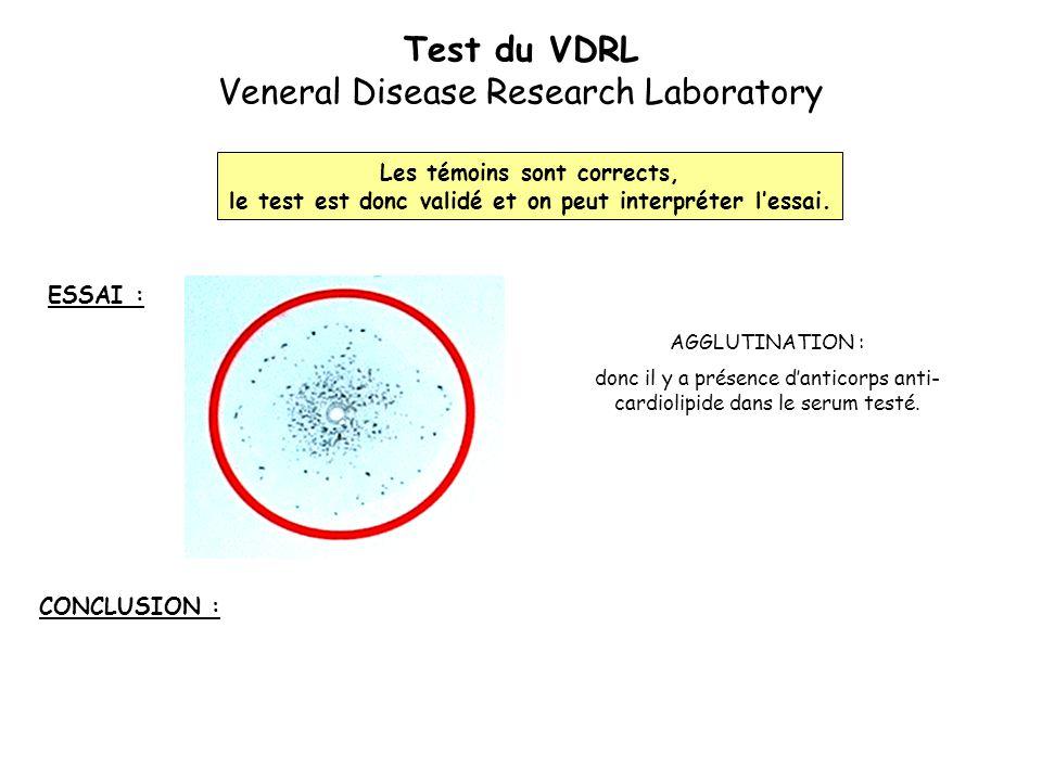 Test du VDRL Veneral Disease Research Laboratory ESSAI : Les témoins sont corrects, le test est donc validé et on peut interpréter l'essai. AGGLUTINAT