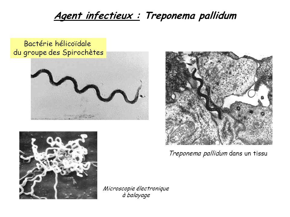 Agent infectieux : Treponema pallidum Bactérie hélicoïdale du groupe des Spirochètes Microscopie électronique à balayage Treponema pallidum dans un ti