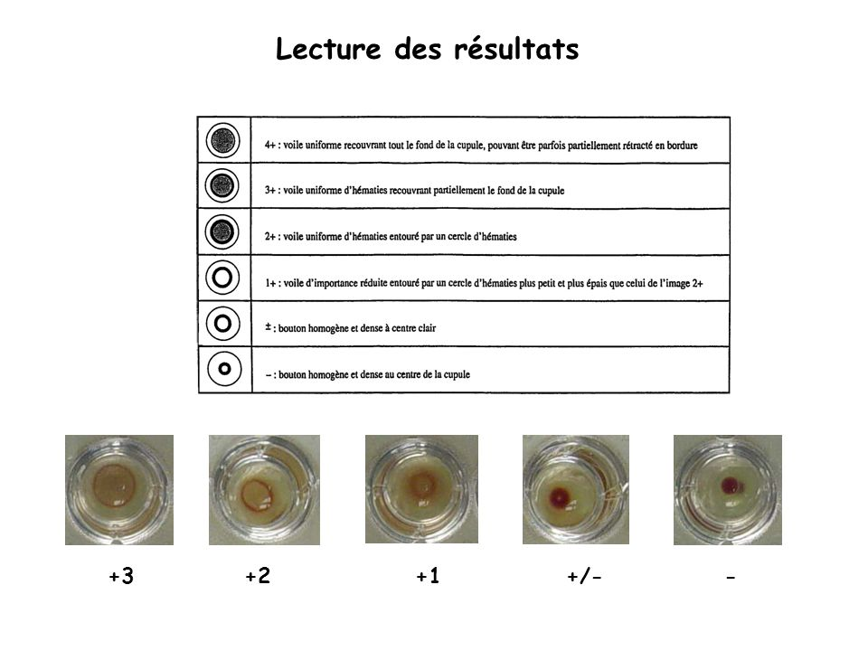 Lecture des résultats +3+2+1+/--