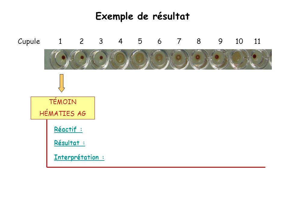 Exemple de résultat Cupule 1 2 3 4 5 6 7 8 9 10 11 Réactif : Interprétation : Résultat : TÉMOIN HÉMATIES AG