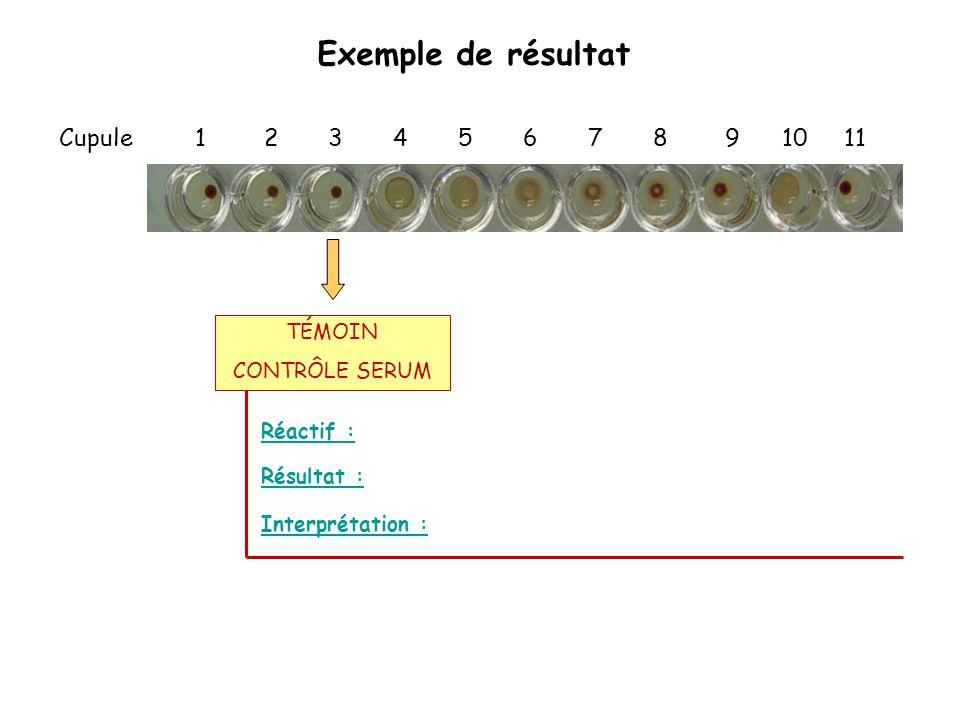 Exemple de résultat Cupule 1 2 3 4 5 6 7 8 9 10 11 Réactif : Interprétation : Résultat : TÉMOIN CONTRÔLE SERUM