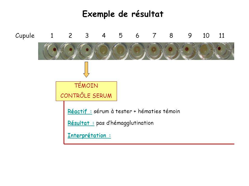 Exemple de résultat Cupule 1 2 3 4 5 6 7 8 9 10 11 Réactif : sérum à tester + hématies témoin Interprétation : Résultat : pas d'hémagglutination TÉMOI