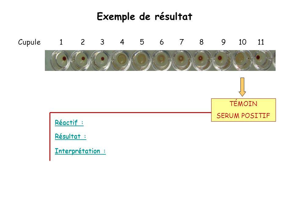 Exemple de résultat Cupule 1 2 3 4 5 6 7 8 9 10 11 Réactif : Interprétation : Résultat : TÉMOIN SERUM POSITIF