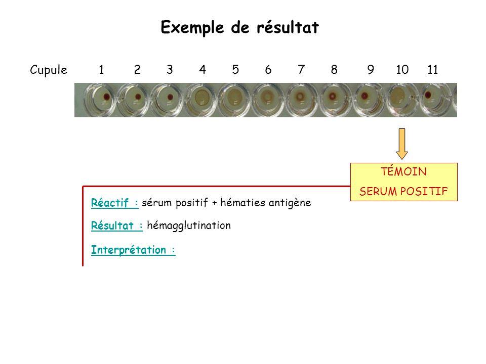 Exemple de résultat Cupule 1 2 3 4 5 6 7 8 9 10 11 Réactif : sérum positif + hématies antigène Interprétation : Résultat : hémagglutination TÉMOIN SER