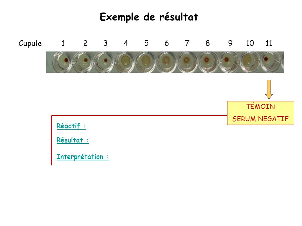 Exemple de résultat Cupule 1 2 3 4 5 6 7 8 9 10 11 Réactif : Interprétation : Résultat : TÉMOIN SERUM NEGATIF