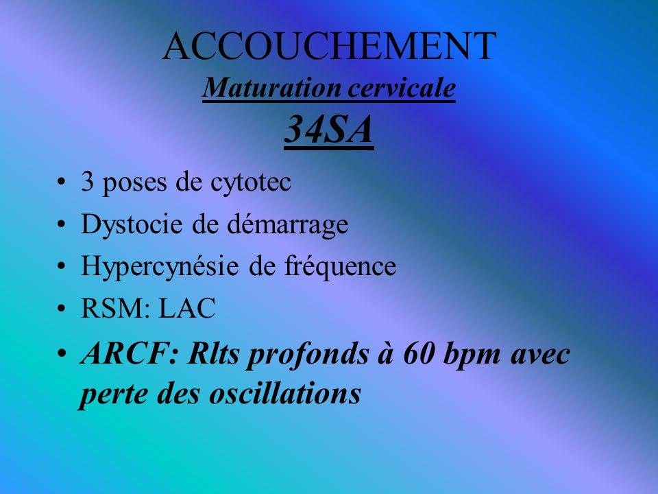 ACCOUCHEMENT Maturation cervicale 34SA 3 poses de cytotec Dystocie de démarrage Hypercynésie de fréquence RSM: LAC ARCF: Rlts profonds à 60 bpm avec p