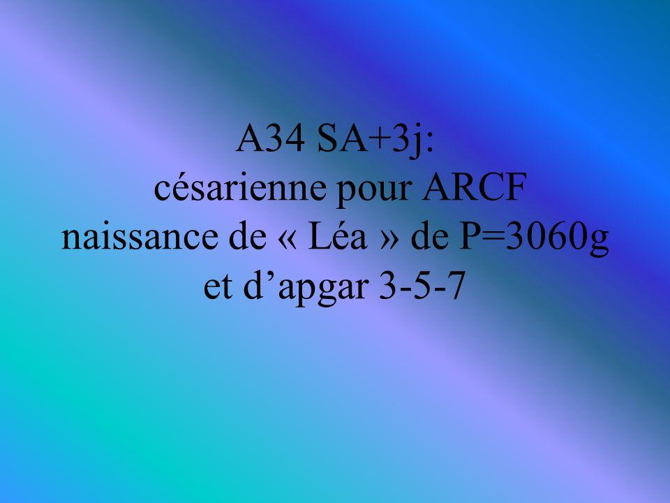 A34 SA+3j: césarienne pour ARCF naissance de « Léa » de P=3060g et d'apgar 3-5-7