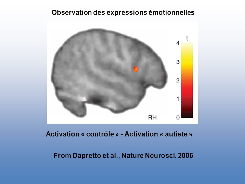 Observation des expressions émotionnelles Activation « contrôle » - Activation « autiste » From Dapretto et al., Nature Neurosci.