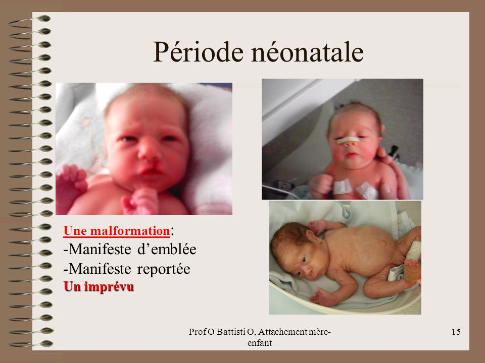 Période néonatale Prof O Battisti O, Attachement mère- enfant 15 Une malformation : -Manifeste d'emblée -Manifeste reportée Un imprévu