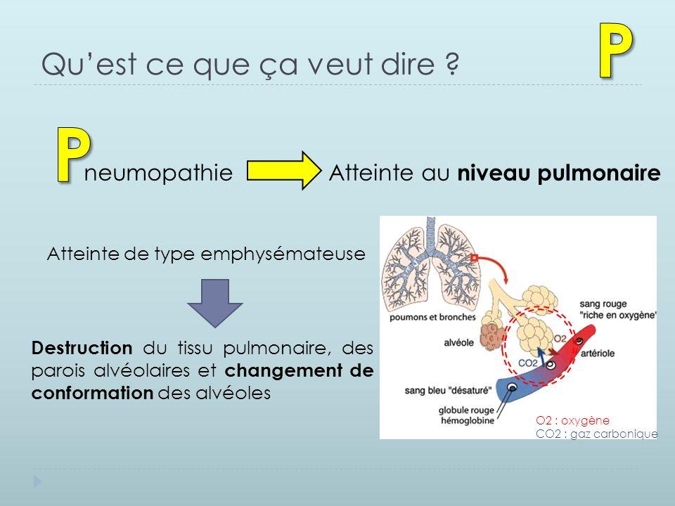 Qu'est ce que ça veut dire ? neumopathie Atteinte au niveau pulmonaire Atteinte de type emphysémateuse Destruction du tissu pulmonaire, des parois alv