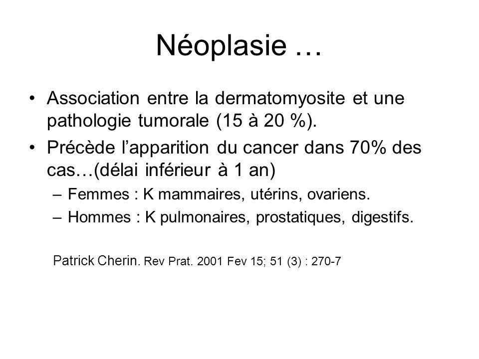 Néoplasie … Association entre la dermatomyosite et une pathologie tumorale (15 à 20 %). Précède l'apparition du cancer dans 70% des cas…(délai inférie