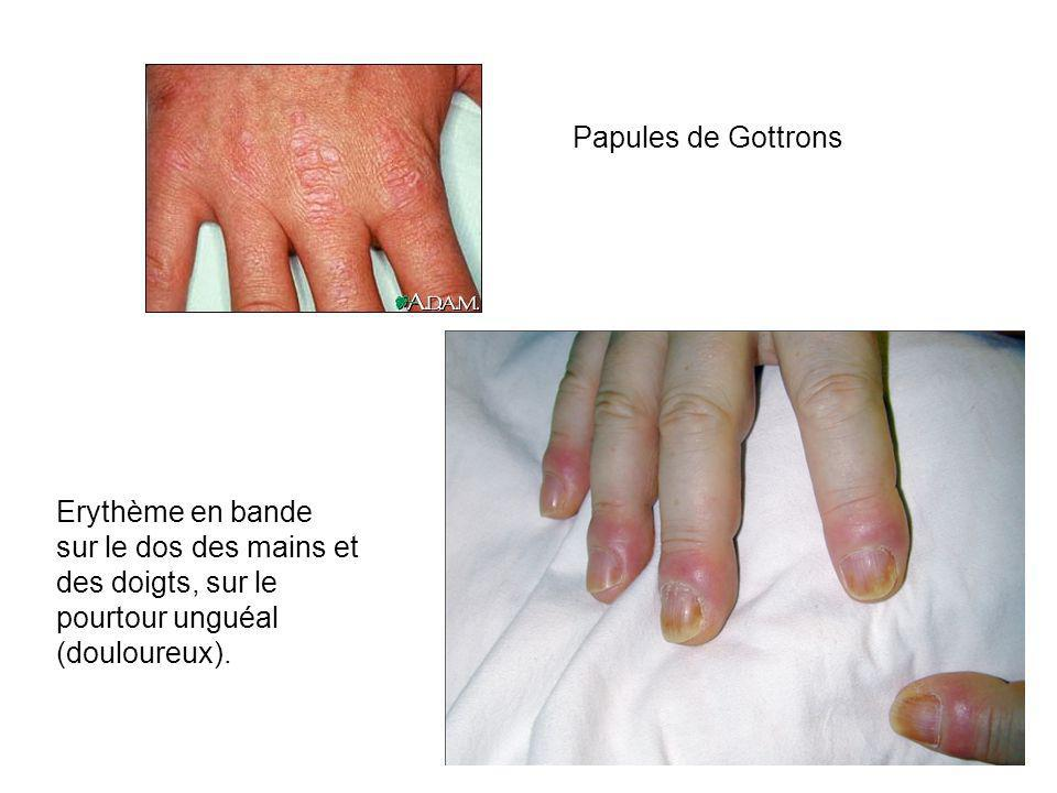 Papules de Gottrons Erythème en bande sur le dos des mains et des doigts, sur le pourtour unguéal (douloureux).