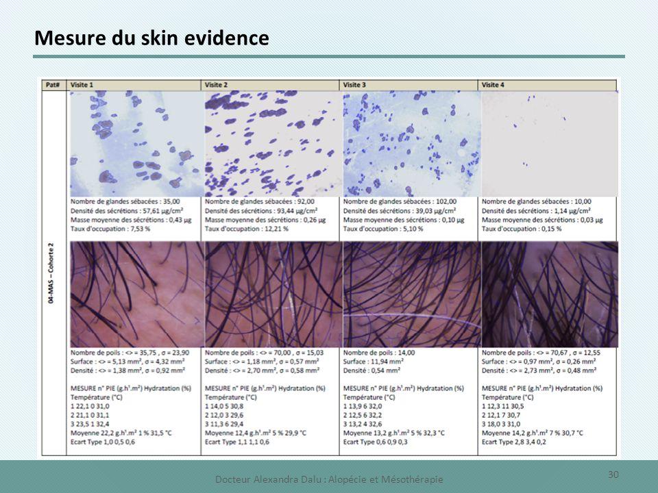 Mesure du skin evidence 30 Docteur Alexandra Dalu : Alopécie et Mésothérapie