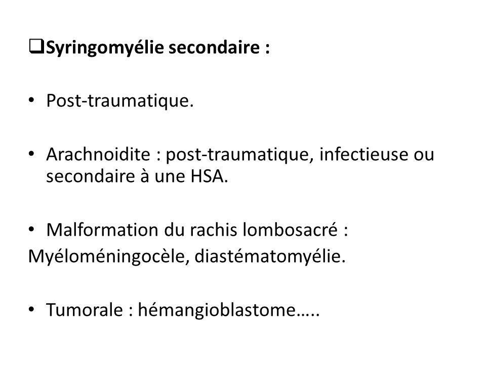  Syringomyélie secondaire : Post-traumatique. Arachnoidite : post-traumatique, infectieuse ou secondaire à une HSA. Malformation du rachis lombosacré