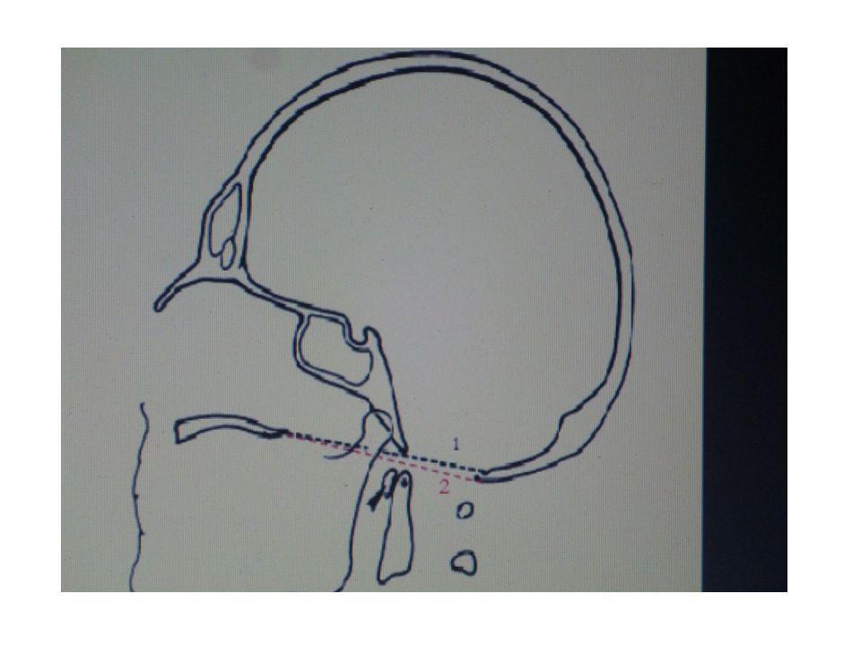 La ligne basilaire de Wakenheim prolonge vers le bas la tangente au clivus, elle affleure chez le sujet normal le bord supérieur de l'odontoïde.
