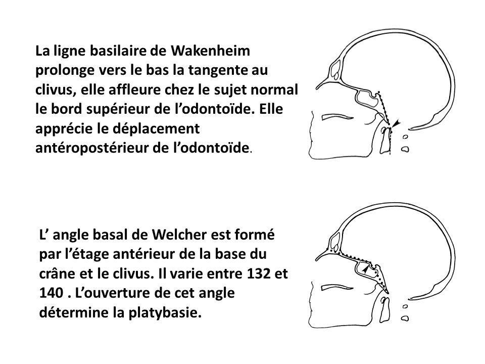 La ligne basilaire de Wakenheim prolonge vers le bas la tangente au clivus, elle affleure chez le sujet normal le bord supérieur de l'odontoïde. Elle