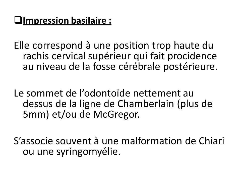  Impression basilaire : Elle correspond à une position trop haute du rachis cervical supérieur qui fait procidence au niveau de la fosse cérébrale po