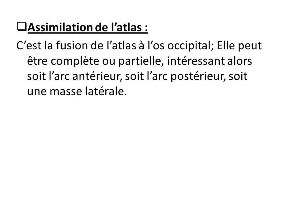  Assimilation de l'atlas : C'est la fusion de l'atlas à l'os occipital; Elle peut être complète ou partielle, intéressant alors soit l'arc antérieur, soit l'arc postérieur, soit une masse latérale.