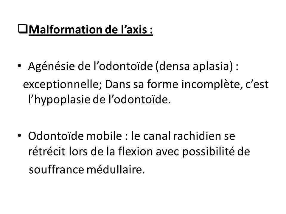  Malformation de l'axis : Agénésie de l'odontoïde (densa aplasia) : exceptionnelle; Dans sa forme incomplète, c'est l'hypoplasie de l'odontoïde. Odon