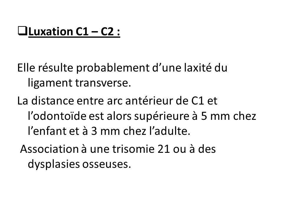  Luxation C1 – C2 : Elle résulte probablement d'une laxité du ligament transverse. La distance entre arc antérieur de C1 et l'odontoïde est alors sup