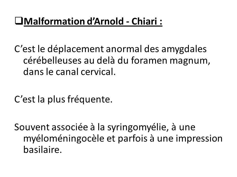  Malformation d'Arnold - Chiari : C'est le déplacement anormal des amygdales cérébelleuses au delà du foramen magnum, dans le canal cervical. C'est l