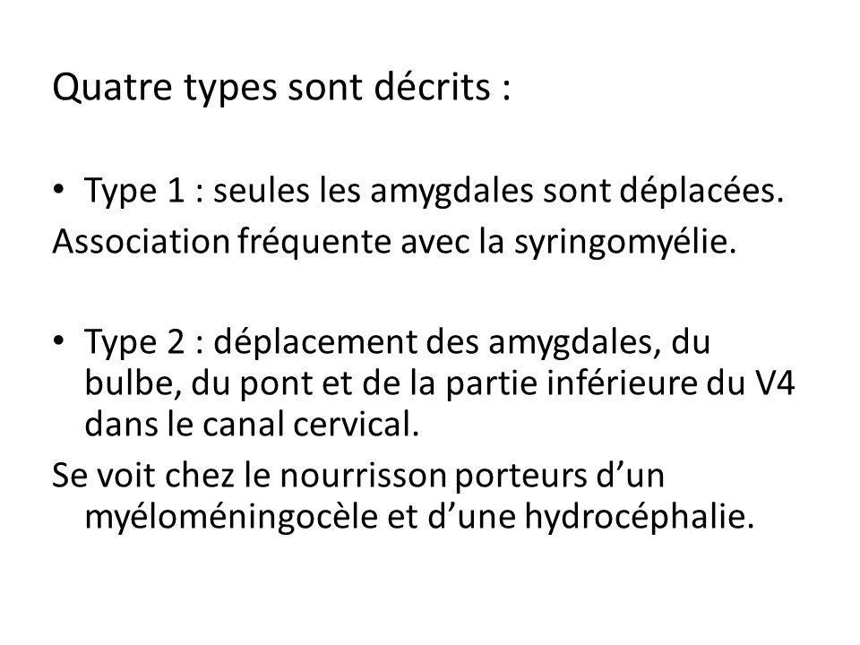 Quatre types sont décrits : Type 1 : seules les amygdales sont déplacées. Association fréquente avec la syringomyélie. Type 2 : déplacement des amygda