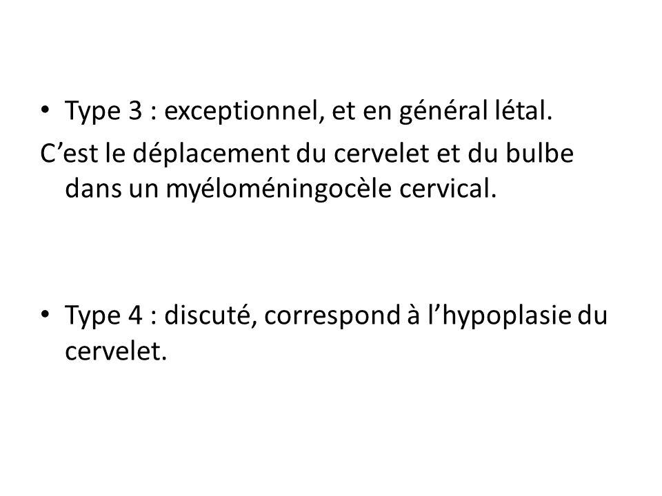 Type 3 : exceptionnel, et en général létal. C'est le déplacement du cervelet et du bulbe dans un myéloméningocèle cervical. Type 4 : discuté, correspo