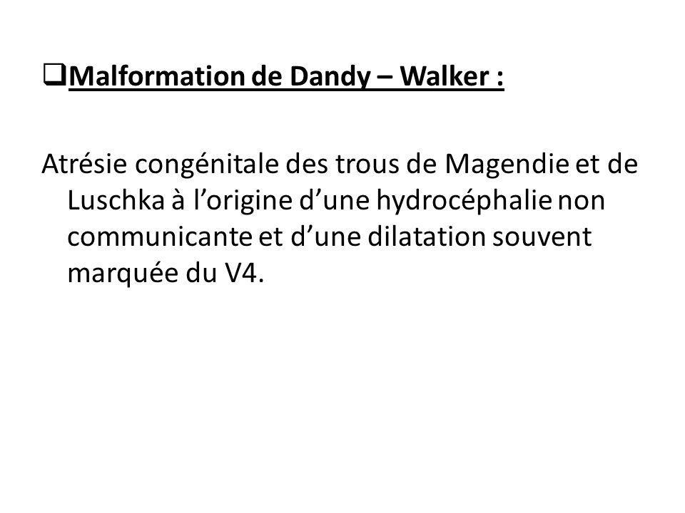  Malformation de Dandy – Walker : Atrésie congénitale des trous de Magendie et de Luschka à l'origine d'une hydrocéphalie non communicante et d'une dilatation souvent marquée du V4.