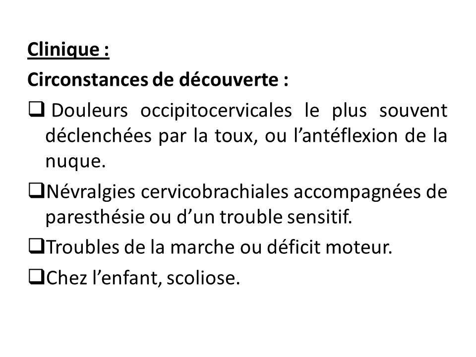 Clinique : Circonstances de découverte :  Douleurs occipitocervicales le plus souvent déclenchées par la toux, ou l'antéflexion de la nuque.