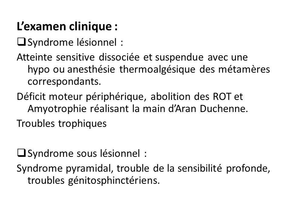 L'examen clinique :  Syndrome lésionnel : Atteinte sensitive dissociée et suspendue avec une hypo ou anesthésie thermoalgésique des métamères corresp