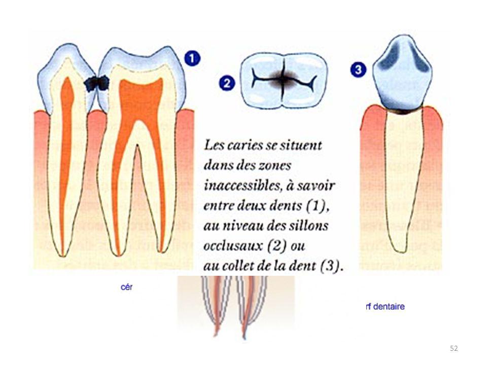 L'hygiène dentaire La carie, c'est quoi exactement ? 52