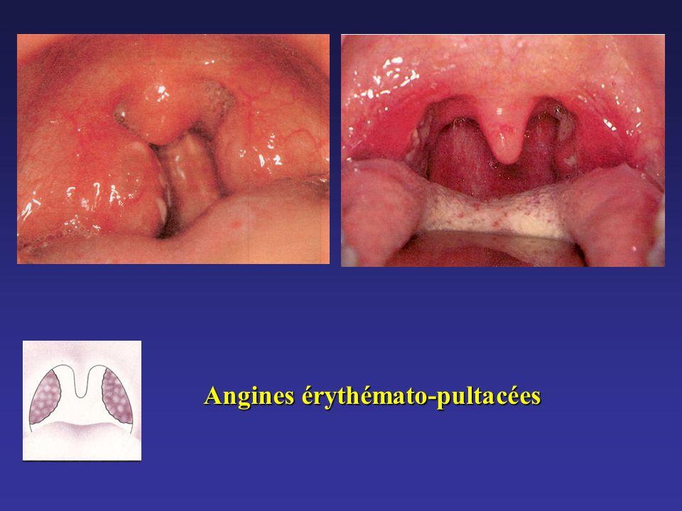 Angines érythémato-pultacées