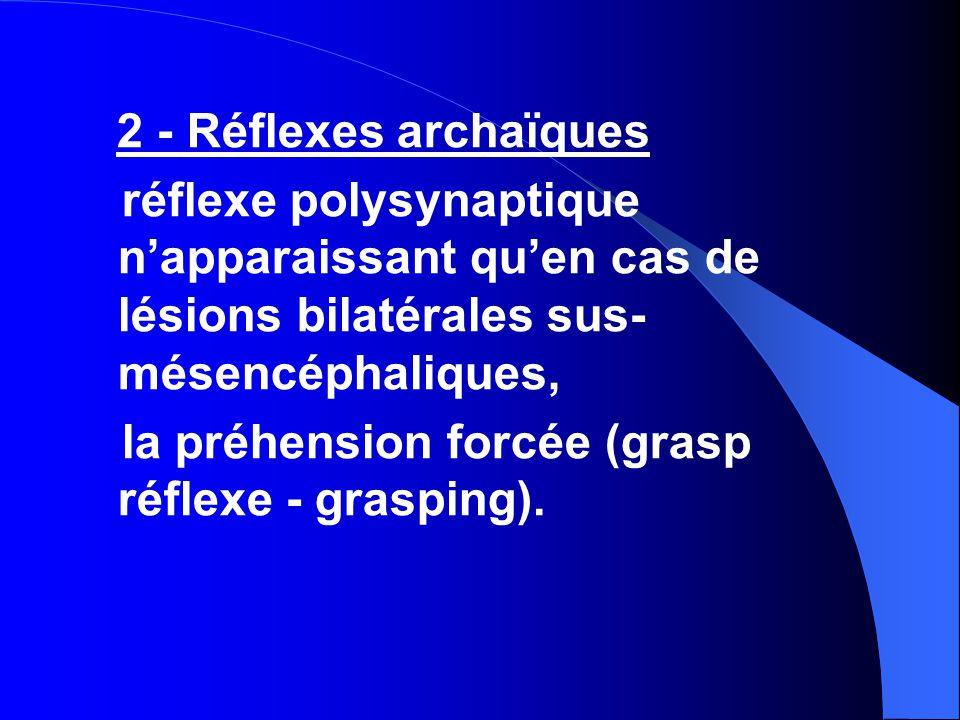 2 - Réflexes archaïques réflexe polysynaptique n'apparaissant qu'en cas de lésions bilatérales sus- mésencéphaliques, la préhension forcée (grasp réflexe - grasping).