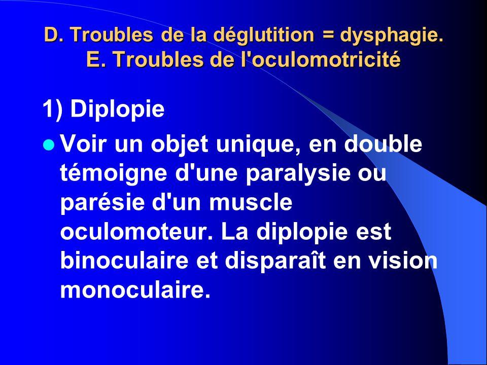 D. Troubles de la déglutition = dysphagie. E. Troubles de l'oculomotricité 1) Diplopie Voir un objet unique, en double témoigne d'une paralysie ou par