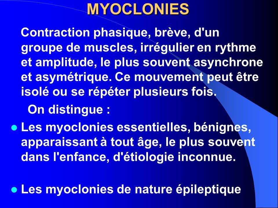 MYOCLONIES Contraction phasique, brève, d'un groupe de muscles, irrégulier en rythme et amplitude, le plus souvent asynchrone et asymétrique. Ce mouve
