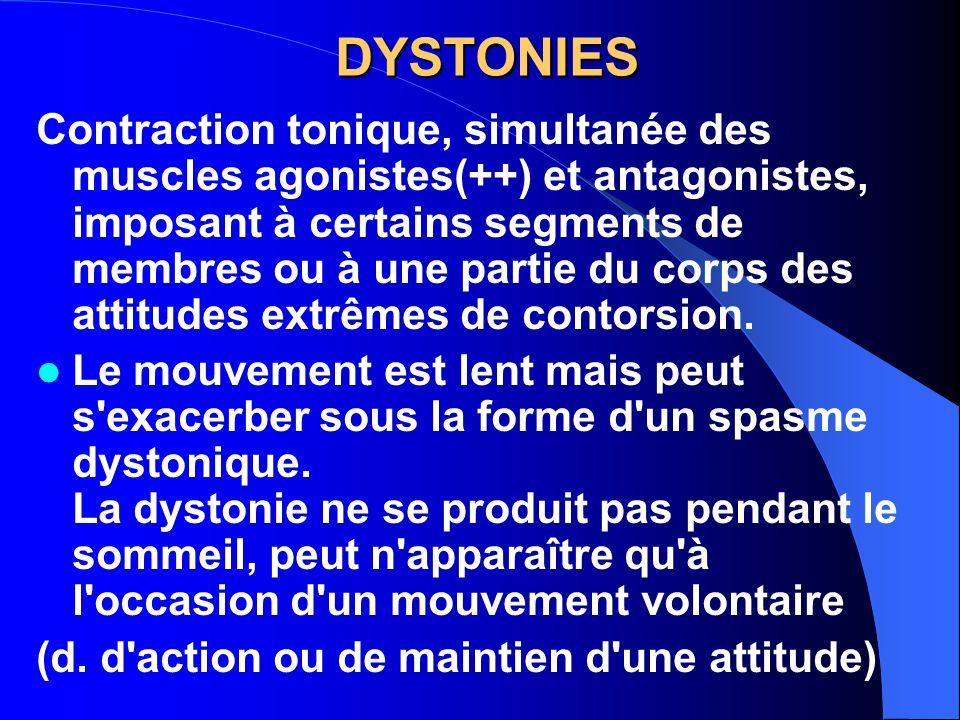 DYSTONIES Contraction tonique, simultanée des muscles agonistes(++) et antagonistes, imposant à certains segments de membres ou à une partie du corps des attitudes extrêmes de contorsion.