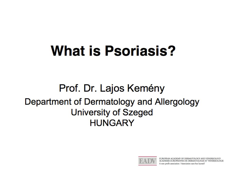 Treatments of psoriasis s Increased disease severity Oral drugs Methotrexate Ciclosporin Acitretin Injectable Biologicals Anti-TNF Anti-IL-12/23 Topicals : creams Ointments, gels Phototherapy Treatment paradigm is driven by disease severity and burden to patients The different disease severities can be successfully treated Treatment selection is a shared decision by patient and physician