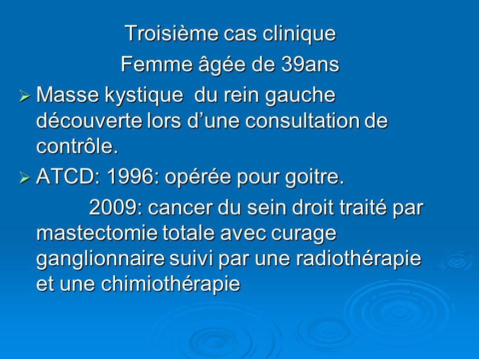 Troisième cas clinique Femme âgée de 39ans  Masse kystique du rein gauche découverte lors d'une consultation de contrôle.  ATCD: 1996: opérée pour g