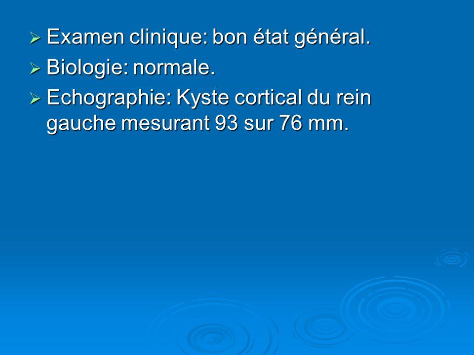  Examen clinique: bon état général.  Biologie: normale.  Echographie: Kyste cortical du rein gauche mesurant 93 sur 76 mm.