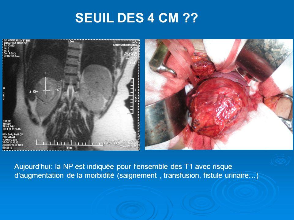 SEUIL DES 4 CM ?? Aujourd'hui: la NP est indiquée pour l'ensemble des T1 avec risque d'augmentation de la morbidité (saignement, transfusion, fistule