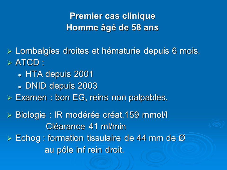 Premier cas clinique Homme âgé de 58 ans  Lombalgies droites et hématurie depuis 6 mois.  ATCD : HTA depuis 2001 HTA depuis 2001 DNID depuis 2003 DN