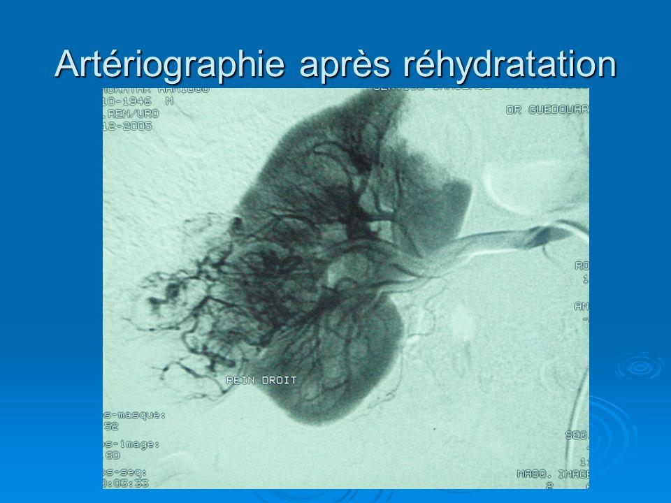 Artériographie après réhydratation