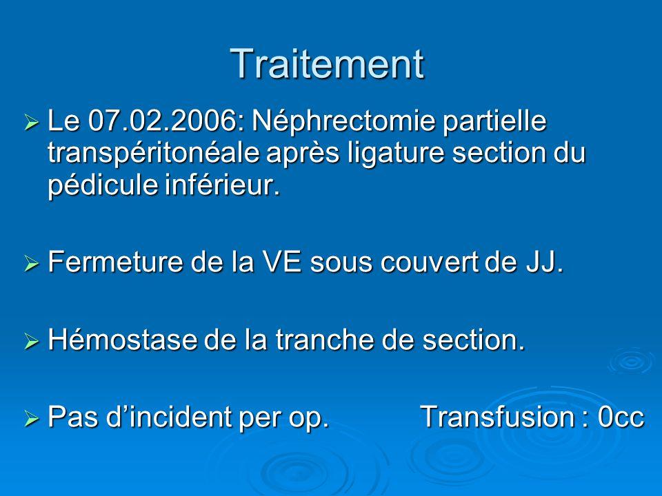 Traitement  Le 07.02.2006: Néphrectomie partielle transpéritonéale après ligature section du pédicule inférieur.  Fermeture de la VE sous couvert de
