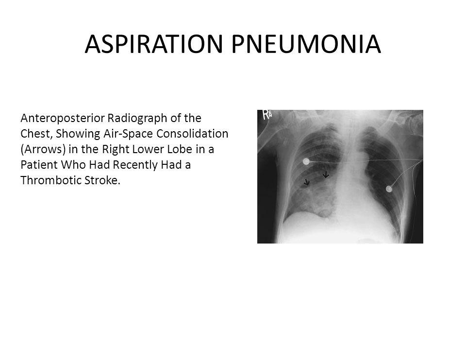 incidence élevée d'aspiration silencieuse des sujets âgés qui développent une pneumonie: – 71% patients CAP vs 10% des contrôles.