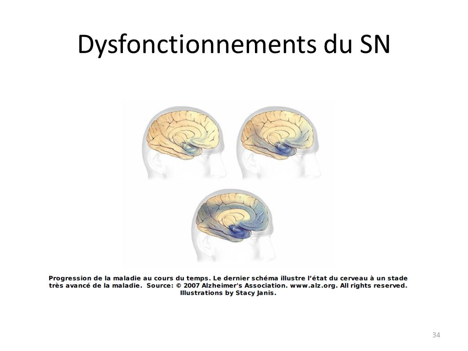 Dysfonctionnements du SN 34