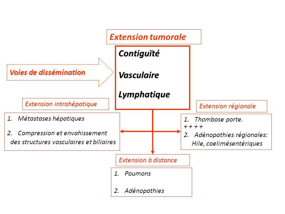 Extension tumorale ContiguïtéVasculaireLymphatique 1.Métastases hépatiques 2.Compression et envahissement des structures vasculaires et biliaires Exte
