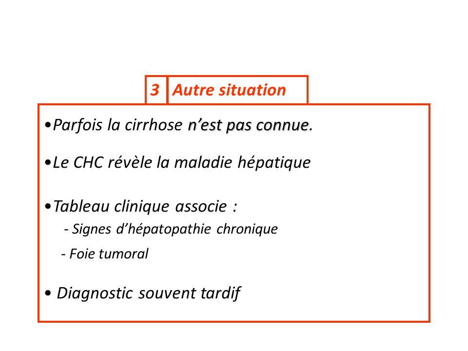 Autre situation3 n'est pas connueParfois la cirrhose n'est pas connue. Le CHC révèle la maladie hépatique Tableau clinique associe : - Signes d'hépato