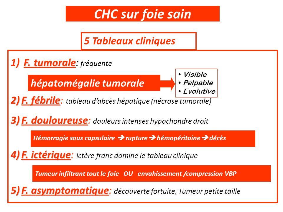 CHC sur foie sain 5 Tableaux cliniques F. tumorale 1) F. tumorale: fréquente 2)F. fébrile 2)F. fébrile: tableau d'abcès hépatique (nécrose tumorale) 3