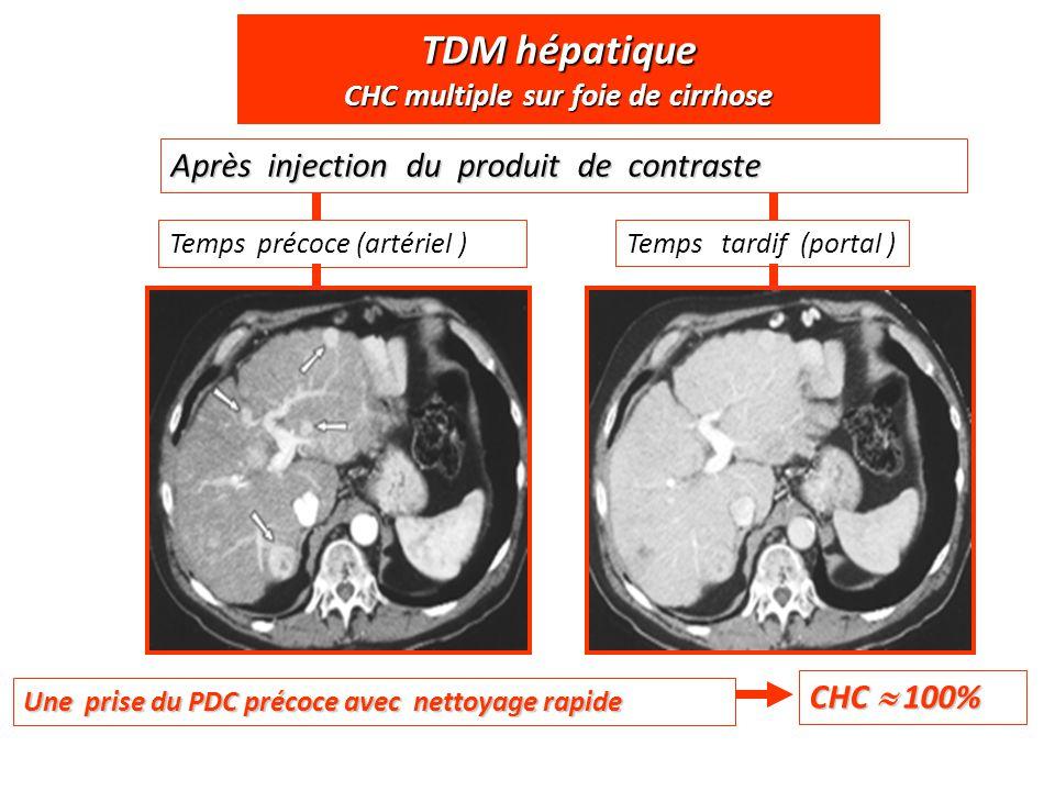 TDM hépatique CHC multiple sur foie de cirrhose Temps précoce (artériel )Temps tardif (portal ) Après injection du produit de contraste Une prise du P