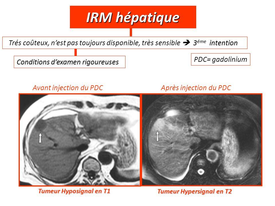 IRM hépatique Conditions d'examen rigoureuses 3 éme intention Trés coûteux, n'est pas toujours disponible, très sensible  3 éme intention Tumeur Hypo